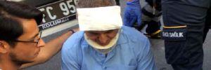 Özcan Yeniçeri'ye araba çarptı
