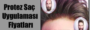 Protez Saç Uygulaması Fiyatları