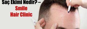 Saç Ekimi Nedir? – Smile Hair Clinic