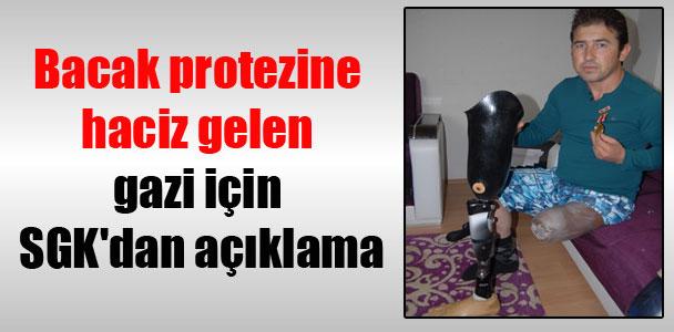 Bacak protezine haciz gelen gazi için SGK'dan açıklama
