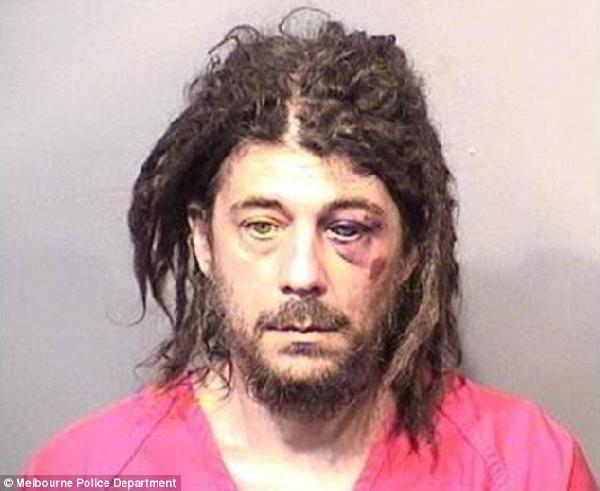 Çıplak adam, polise üniformasından söktüğü rozetle saldırdı