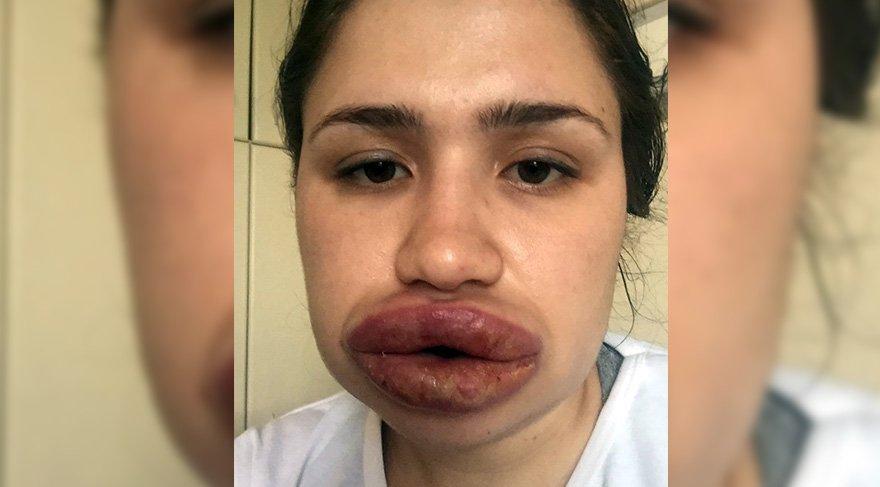 Silikon mağduru hemşire ameliyat oldu