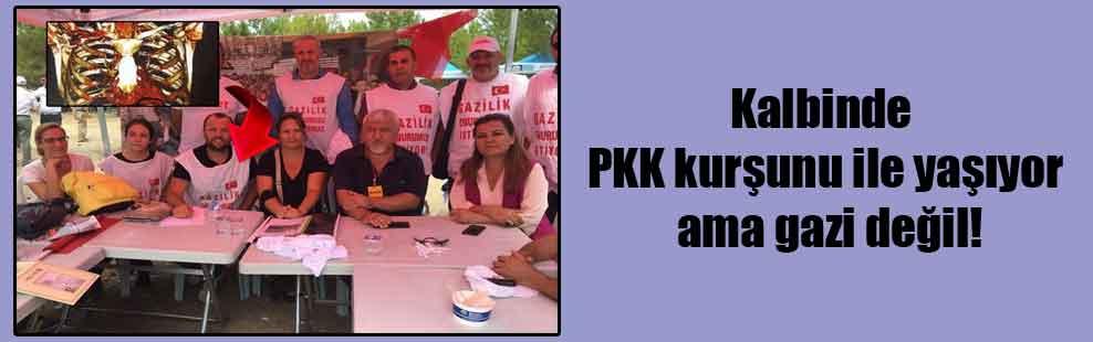 Kalbinde PKK kurşunu ile yaşıyor ama gazi değil!