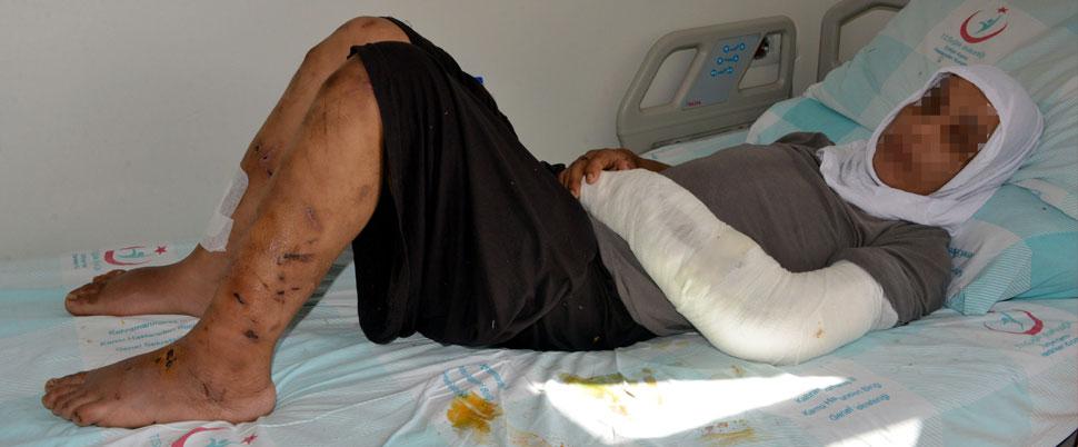Kahramanmaraş'ta koca dehşeti!.. 15 gün boyunca!..