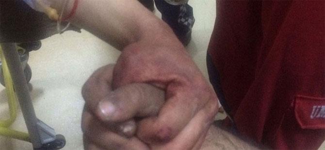 Afrin harekatında yaralanan askerlerimizin fotoğrafı yürekleri burktu