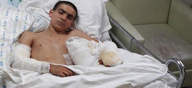 Pitbull saldıran çocuk ağır yaralandı