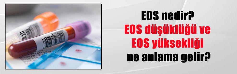 EOS nedir? EOS düşüklüğü ve EOS yüksekliği ne anlama gelir?
