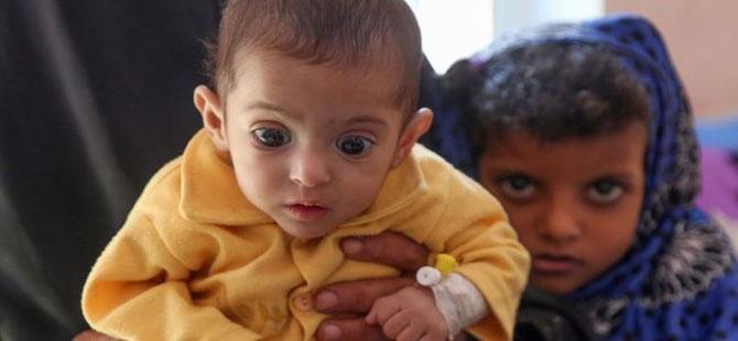 Yemen'de Suudiler'e desteği kesme tasarısı, ABD Senatosu'ndaki ilk oylamada kabul edildi