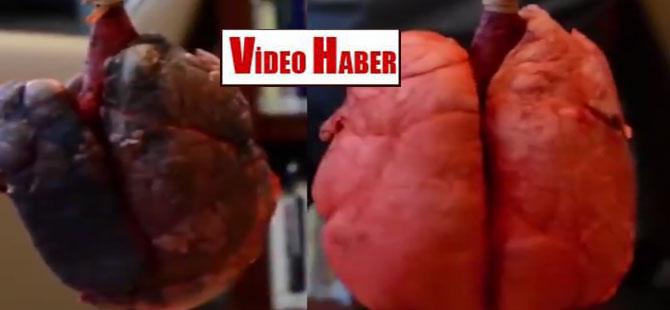 Sigara içen ve içmeyen insanın akciğeri!