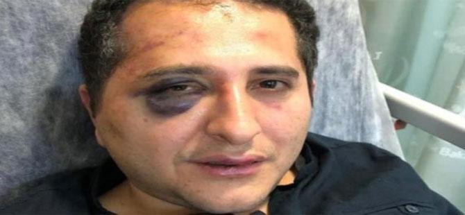 Çırağan'da avukata yapılan işkence Meclis gündeminde!