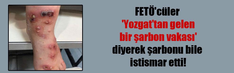 FETÖ'cüler 'Yozgat'tan gelen bir şarbon vakası' diyerek şarbonu bile istismar etti!