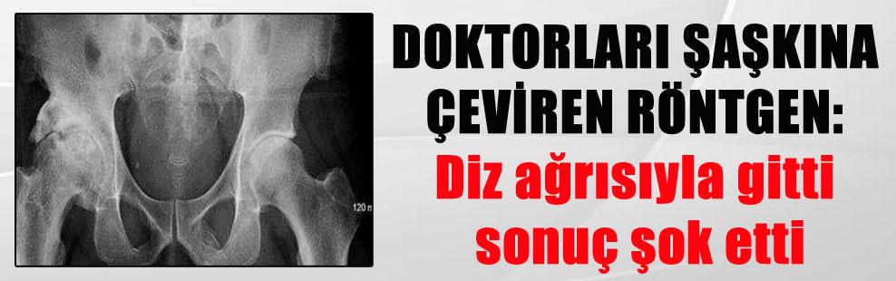 DOKTORLARI ŞAŞKINA ÇEVİREN RÖNTGEN: Diz ağrısıyla gitti sonuç şok etti