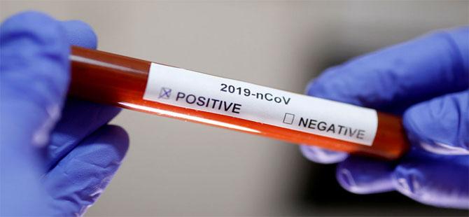 İŞKUR'da 8 memurun corona testi pozitif çıktı