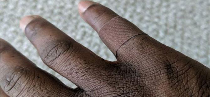 İngiltere'de siyahların ten rengine uygun yara bantları piyasaya çıktı