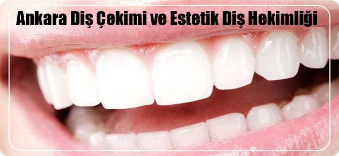 Ankara Diş Çekimi ve Estetik Diş Hekimliği