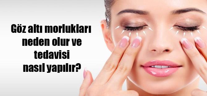 Göz altı morlukları neden olur ve tedavisi nasıl yapılır?
