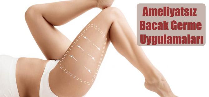 Ameliyatsız Bacak Germe Uygulamaları