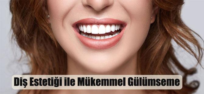 Diş Estetiği ile Mükemmel Gülümseme